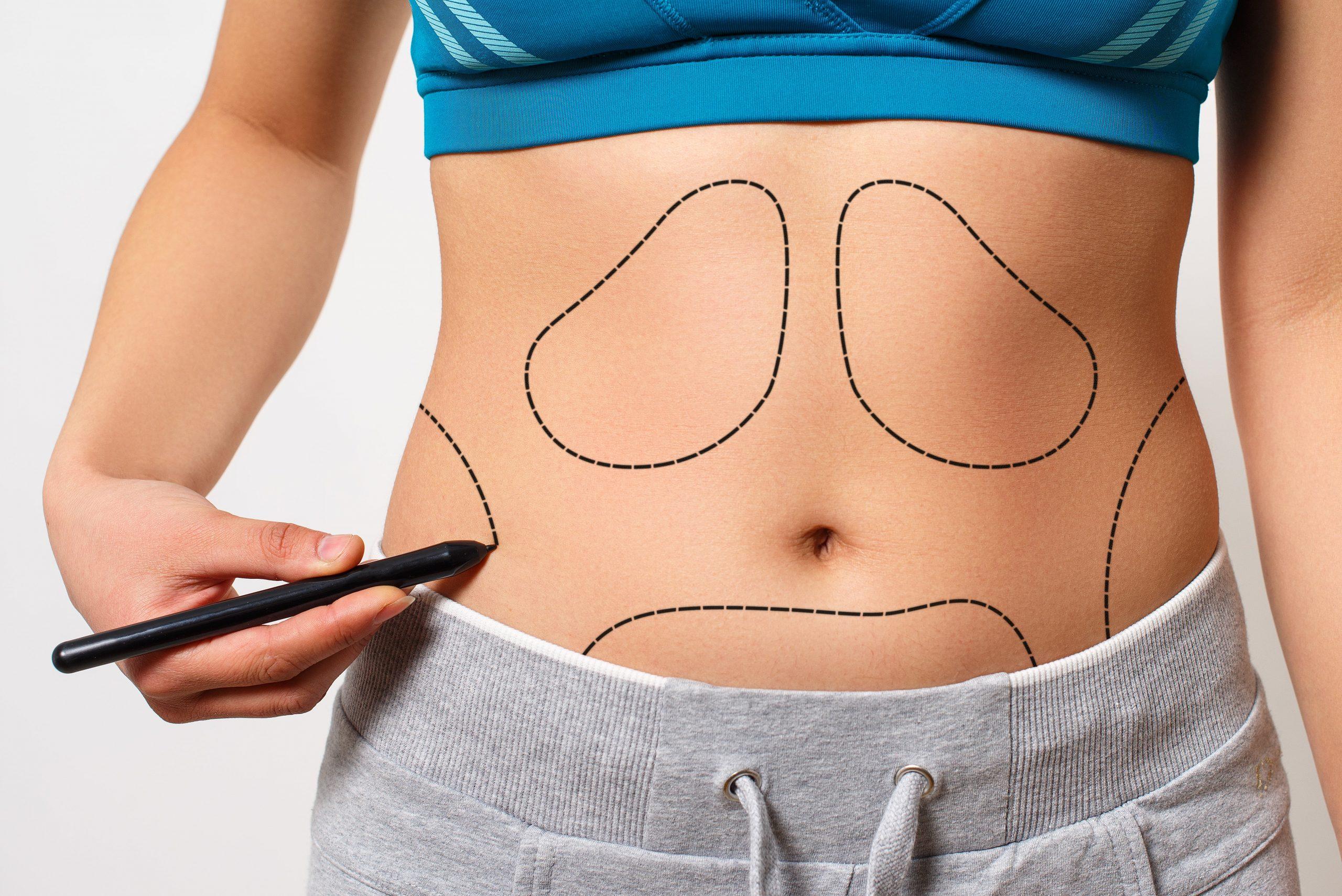 erro médico em abdominoplastia