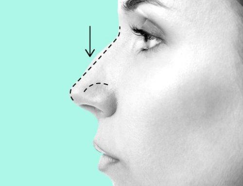 CFO decide: Dentistas não podem fazer cirurgias no nariz
