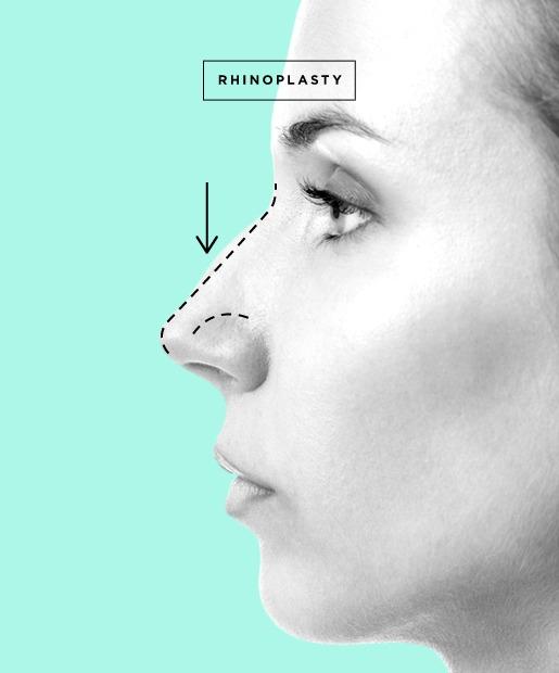 dentistas não podem fazer cirurgias no nariz